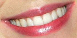 image of Katy Perry's teeth