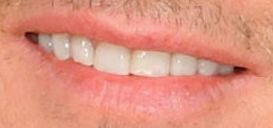 Picture of Keith Urban's teeth while smiling