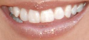 Picture of Kellie Pickler teeth and smile