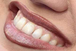 Kelly Clarkson's teeth