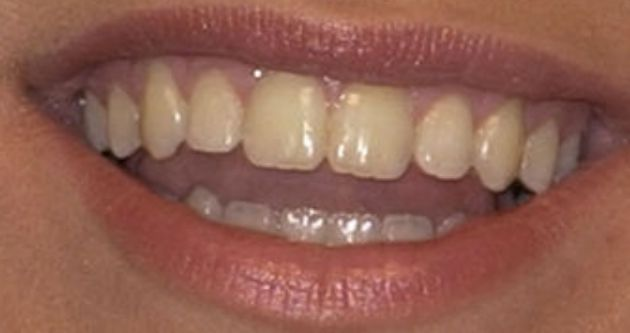Picture of Kelly Clarkson's teeth and smile