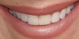 Picture of Kelly Monaco teeth and smile