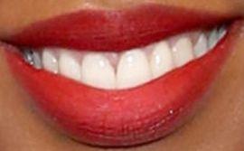Kelly Rowland's teeth