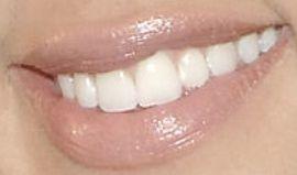 Khloe Kardashian's teeth