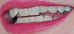 Picture of Kirsten Dunst's teeth while smiling