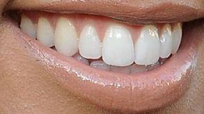 Picture of Kourtney Kardashian teeth and smile