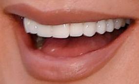Kris Jenner's teeth