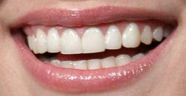 Picture of Kristen Bell teeth and smile