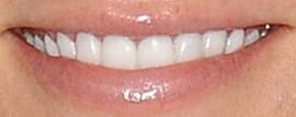 Picture of Kristen Wiig teeth and smile