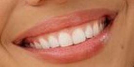 Picture of Krystal Nielson teeth and smile