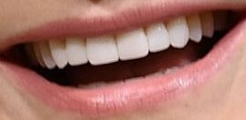 Picture of Kyra Sedgwick teeth and smile