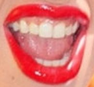Lady Gaga's teeth