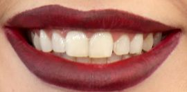 Lady Gaga's teeth