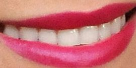 Picture of Lauren Conrad teeth and smile