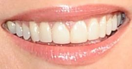 Picture of Lauren Graham teeth and smile