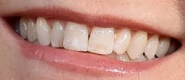 Picture of Lea Thompson teeth and smile