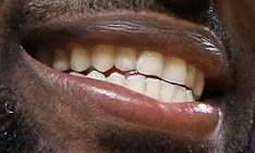 LeBron James teeth