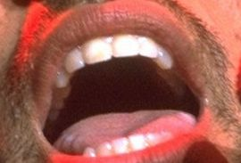 Picture of Lenny Kravitz teeth