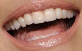 Picture of Leslie Bibb teeth and smile