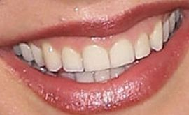 Picture of Lexi Ainsworth teeth and smile