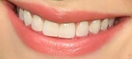 Picture of Lili Reinhart teeth and smile