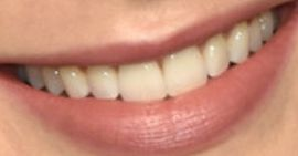 Picture of Lily Collins teeth and smile