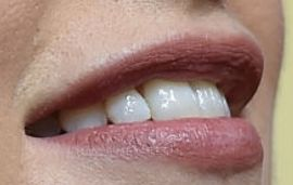 Picture of Lily James teeth and smile