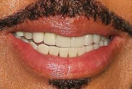 Picture of Lionel Richie teeth and smile