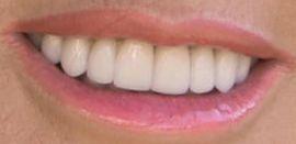 Picture of Lisa Vanderpump teeth and smile