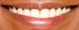 Picture of Liya Kebede teeth and smile
