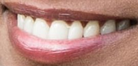 Picture of Liya Kebede teeth and smile
