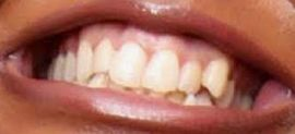 Image of Lizzo's teeth