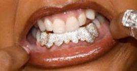 Lizzo's teeth