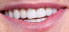 Picture of Logan Paul teeth and smile