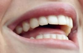 Picture of Lorde teeth and smile