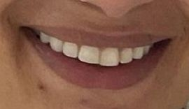 Picture of Loren Brovarnik teeth and smile
