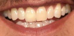 Image of Luke Bryan teeth