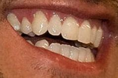 Image of Image of Luke Bryan teeth