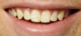 Picture of Luke Hemmings teeth and smile