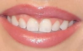 Picture of Madison Maddie Marlow teeth and smile