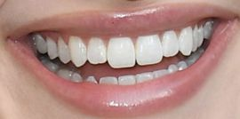Picture of Madelaine Petsch teeth and smile