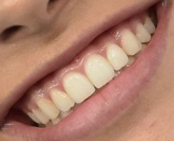 Picture of Madison Beer teeth and smile