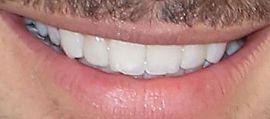 Picture of Maluma teeth and smile
