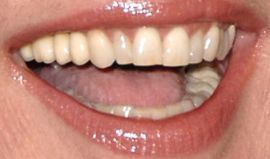 Picture of Maria Conchita Alonso teeth and smile