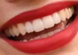 Margot Robbie's teeth