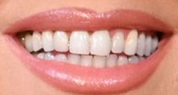 Mariah Carey's teeth