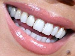 Mariah Carey's teeth and smile