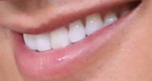 Picture of Mario Lopez's teeth and smile while smiling