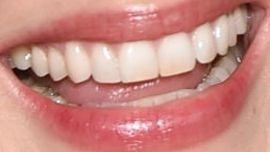 Picture of Marion Cotillard teeth and smile