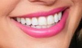 Picture of Mary Fitzgerald teeth and smile